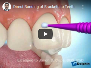 Direct Bonding of Brackets to Teeth